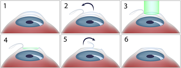 The LASIK procedure